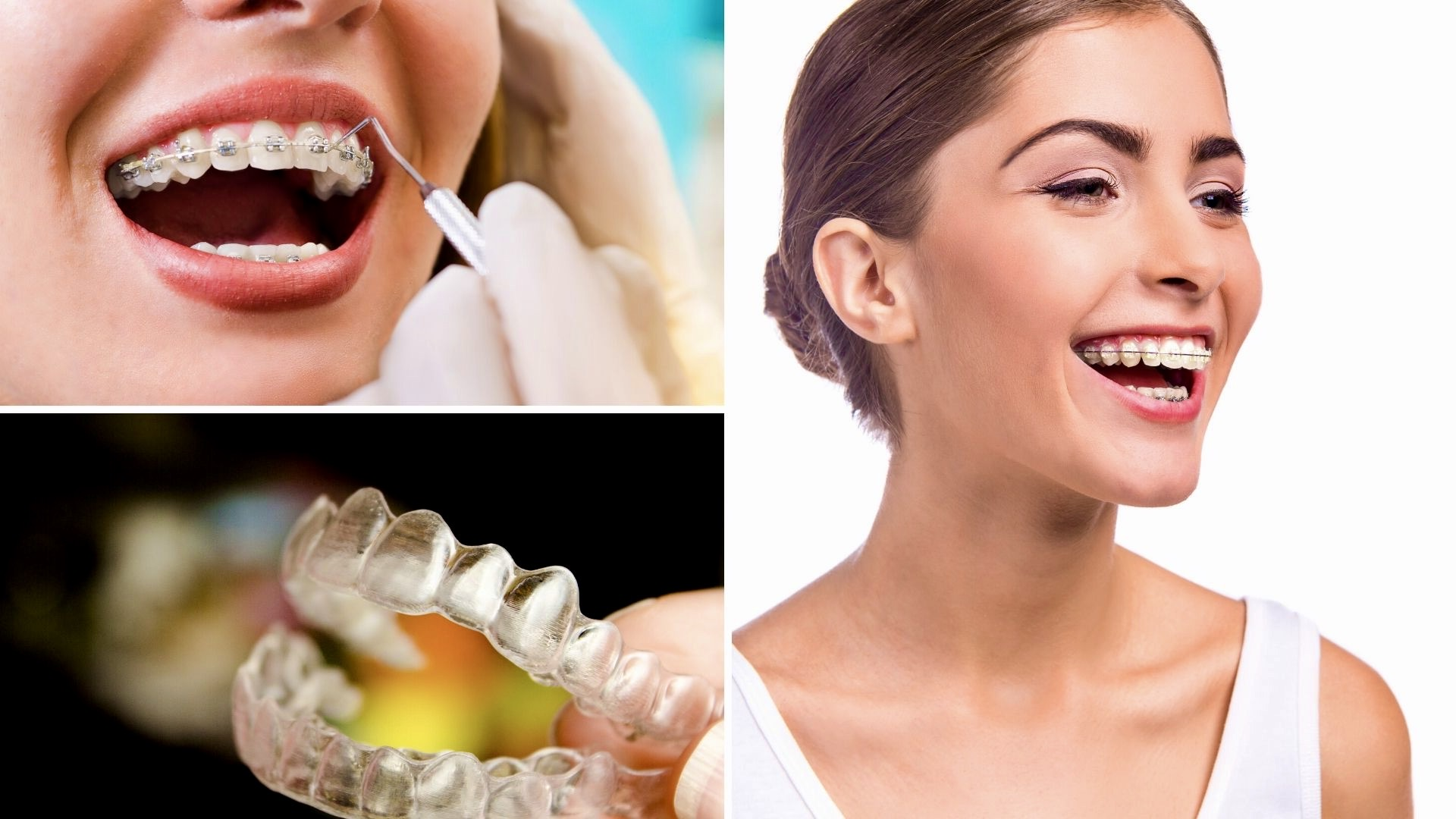 beneficios de los brackets transparentes